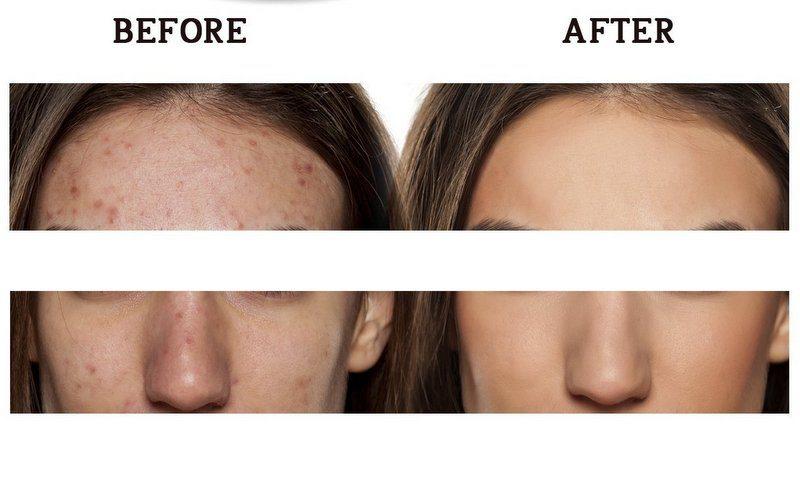 Mejores cremas anti-acné